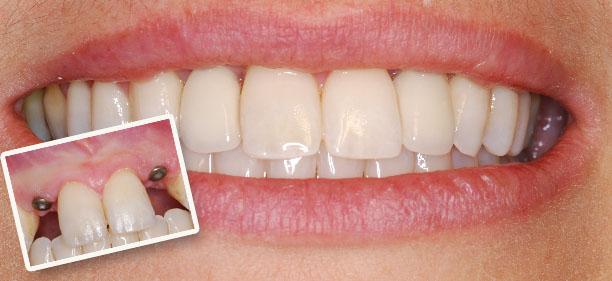 Implantul dentar poate fi cea mai buna alegere pentru dantura dumneavoastra!