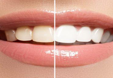 Cum sa ai dintii albi intr-un timp foarte scurt?