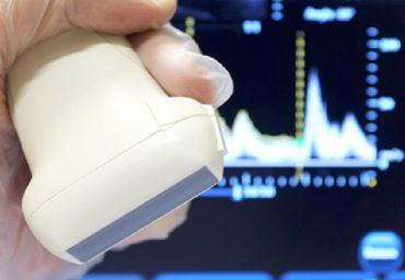 Ce este o ecografie Doppler?